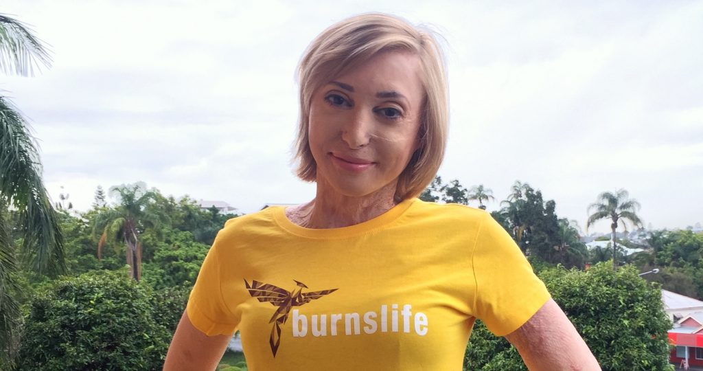 Charlotte in her Burnslife T-Shirt in 2015